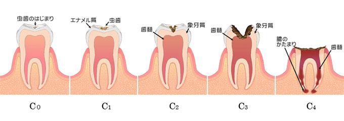 虫歯の進み方